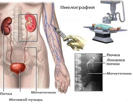 Нефролитиаз: причины, виды, симптомы, лечение и профилактика