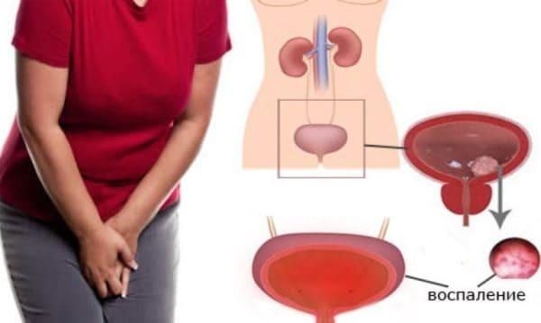 Как женщинам вылечить цистит без антибиотиков