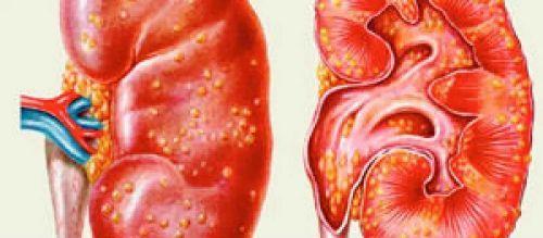 Лейкоцитурия (пиурия) в моче: что это такое, причины возникновения у беременных женщин и детей