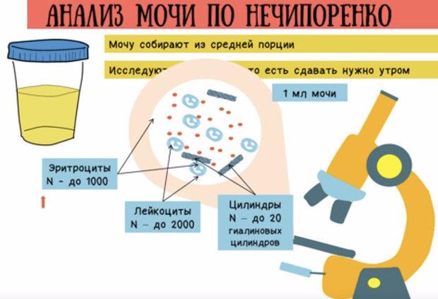 Анализ мочи по Нечипоренко: как собирать, расшифровка и норма у детей