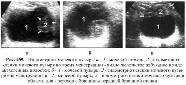 Эндометриоз мочевого пузыря у женщин: симптомы, диагностика и лечение