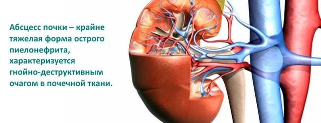Абсцесс почки: причины, диагностика, лечение и профилактика