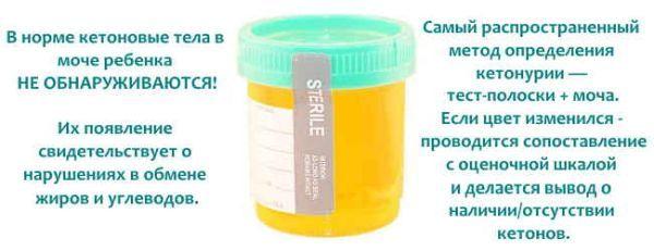 Кетоновые тела в моче: норма, причины повышения, симптомы, лечение