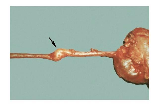 Рак мочеточника у мужчин и женщин: симптомы, диагностика, лечение
