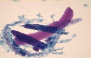 Повышенный эпителий в моче - причины, норма у женщин мужчин и детей, подготовка к анализу