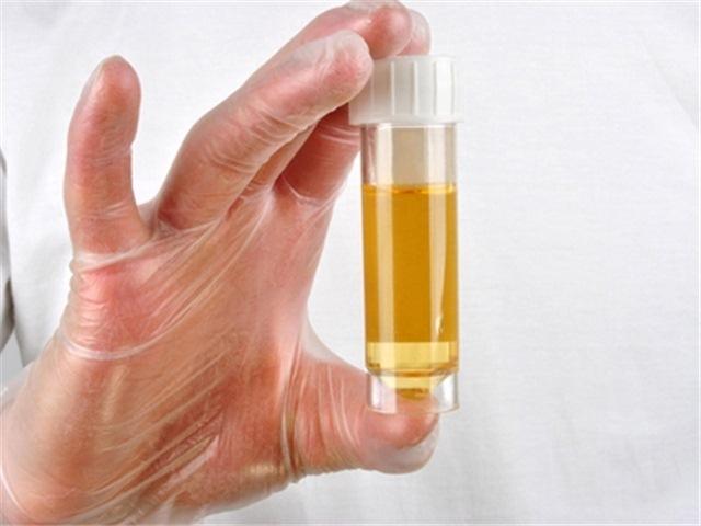 Что означает белый осадок в моче у женщин, мужчин и детей: причины, лечение