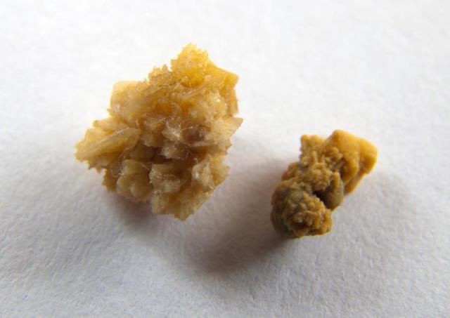 Дробление камней в почках и мочеточнике лазером: преимущества, цена