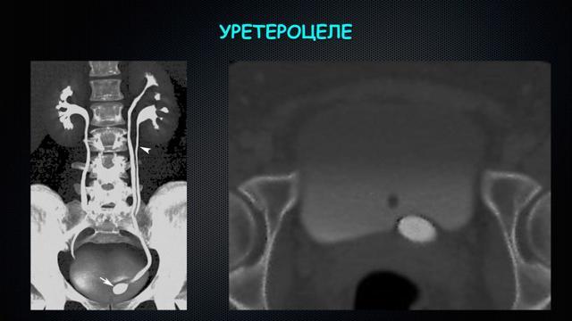 Уретероцеле мочевого пузыря: признаки, лечение и профилактика