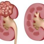 Рак почек: симптомы у женщин и мужчин, лечение, код по мкб-10
