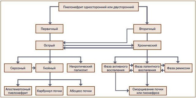 Обструктивный пиелонефрит: причины, симптомы, лечение и прогноз