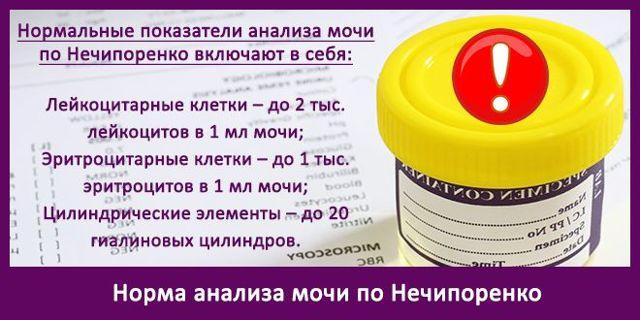 Правила подготовки и сбора мочи по Нечипоренко у взрослых и детей