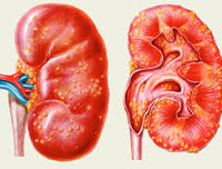 Причины возникновения апостематозного пиелонефрита: стадии и лечение