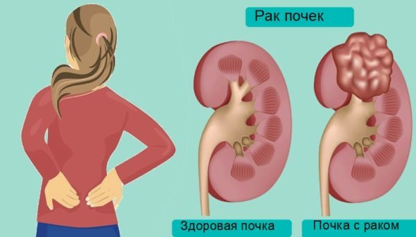Прогноз выживаемости при раке почки: продолжительность жизни на разных стадиях и после удаления
